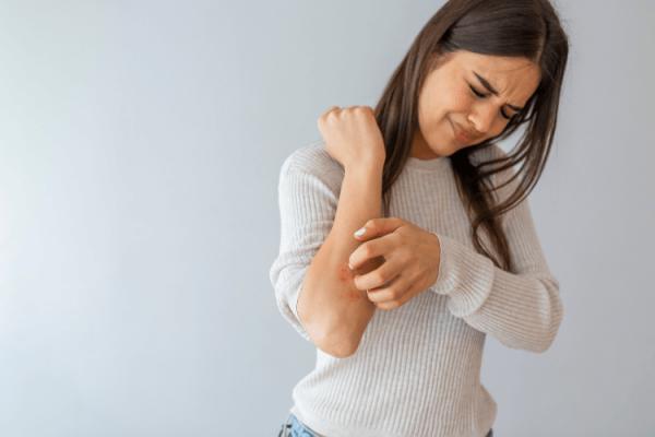 Produkty na łuszczycę  – codzienna pielęgnacja skóry wymagającej